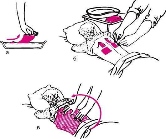 Как правильно ставить горчичники при кашле детям?