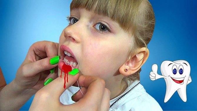 Как удалить корень зуба дома - советы стоматологов
