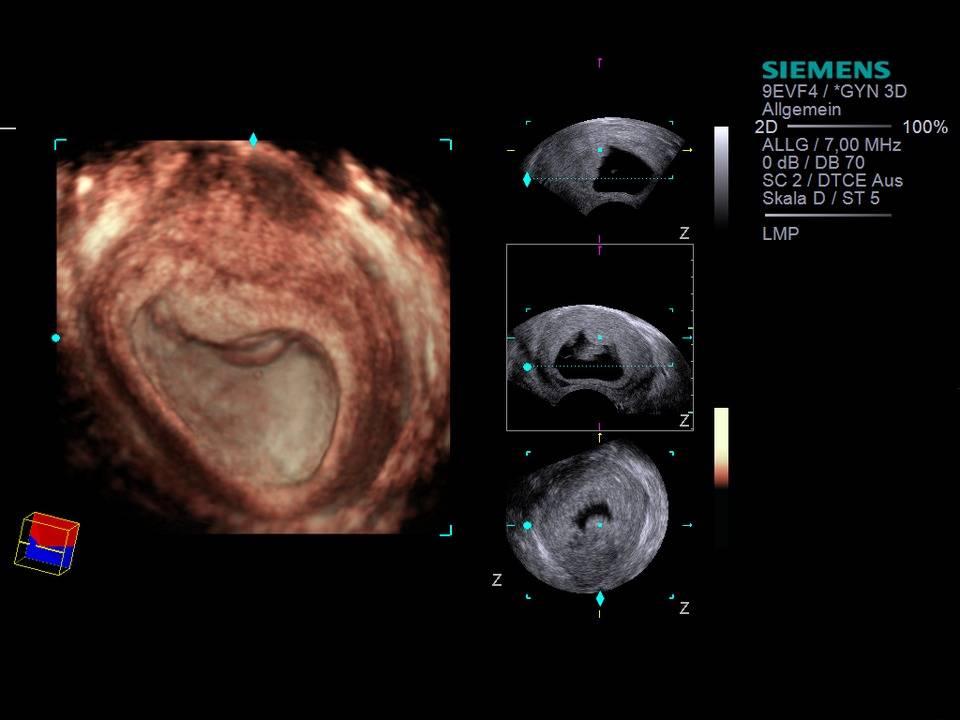 Замершая беременность. как определить и что делать?