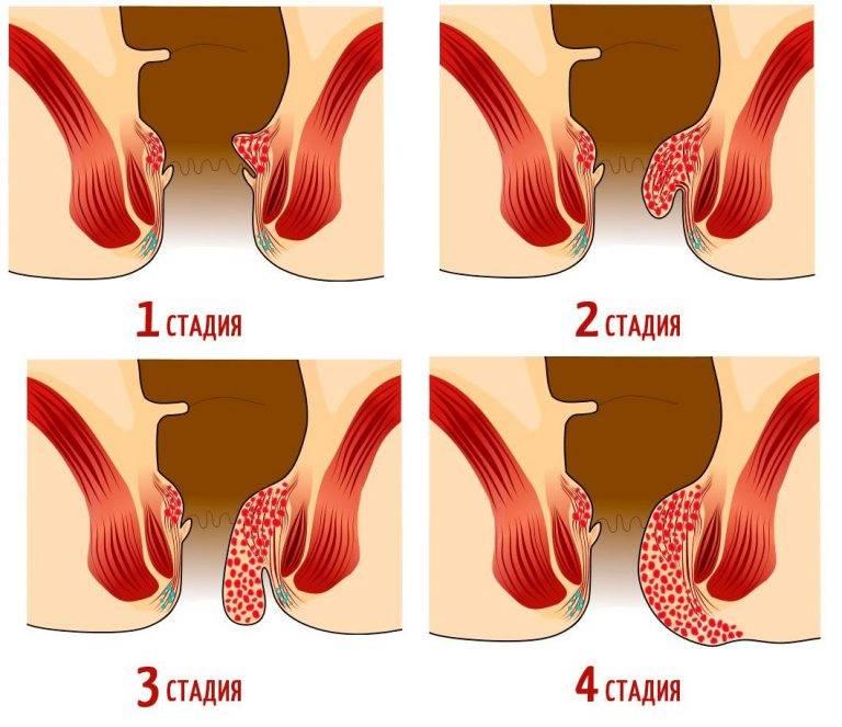 Геморрой и беременность