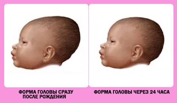 Во сколько зарастает родничок у младенцев | главный перинатальный - всё про беременность и роды