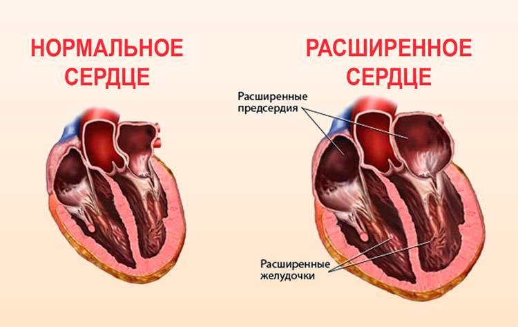 Гипертрофия левого желудочка неясной этиологии