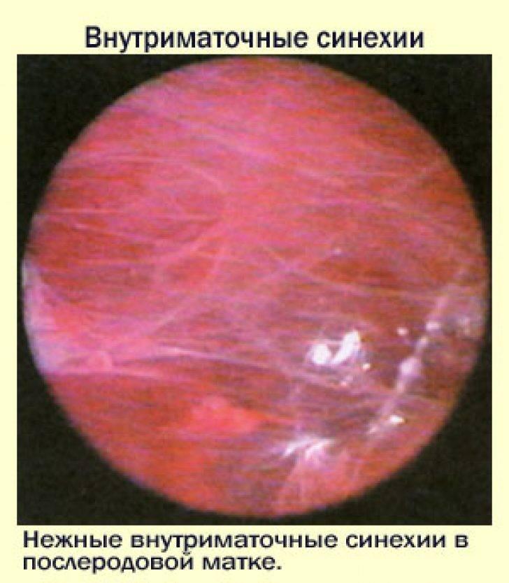 Лапароскопическая операция при миоме