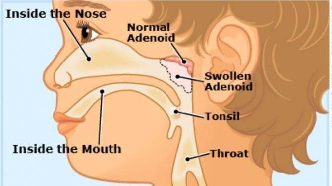 Удаление полипов в носу  – клиника доктора коренченко