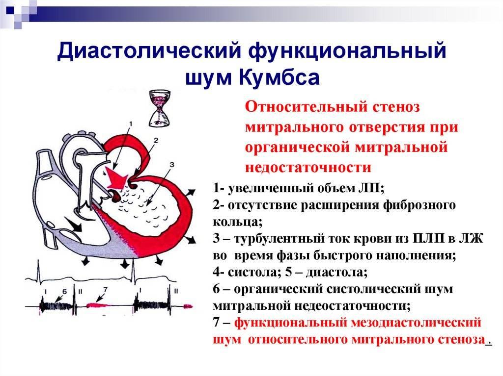 «шумное» сердце. о чём говорит этот симптом у новорождённого? | здоровье ребенка | здоровье