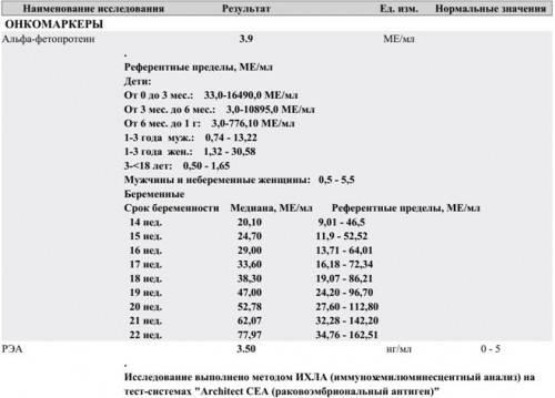 Альфа-фетопротеин (афп) указывает на аномалии плода или рак у взрослых — 1 100  р. – цэлт
