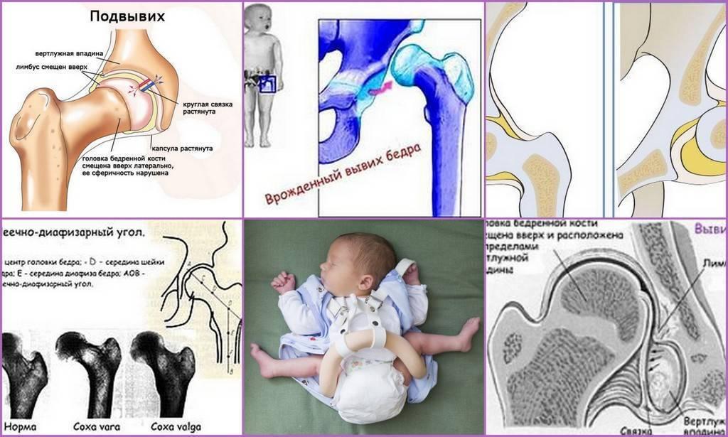 Дисплазия тазобедренного сустава – симптомы и признаки патологии. лечение дисплазии – массаж, гимнастика, упражнения