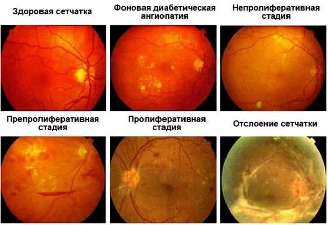 Лечение макулодистрофии сетчатки глаза в москве. стоимость лечения макулодистрофии в клинике с.федорова