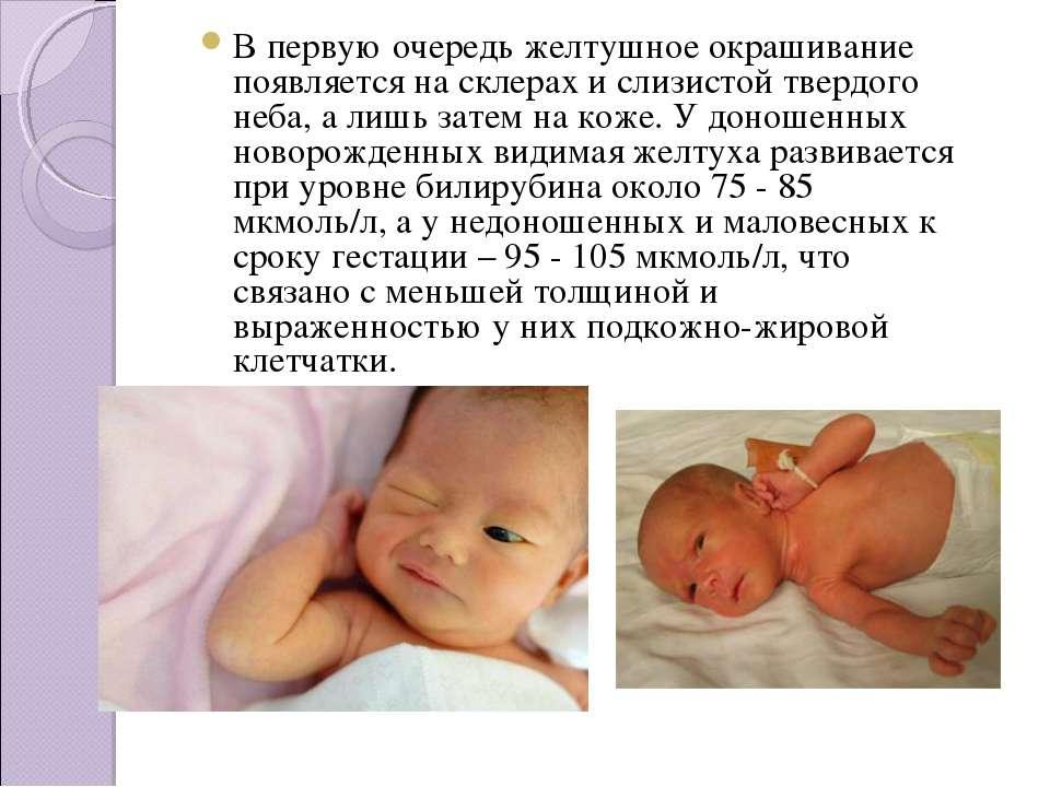 Гепатит g у детей - симптомы болезни, профилактика и лечение гепатита g у детей, причины заболевания и его диагностика на eurolab