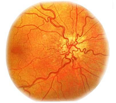 Меланома глаза: прогноз, рак глазного яблока, меланома сетчатки глаза и радужной оболочки