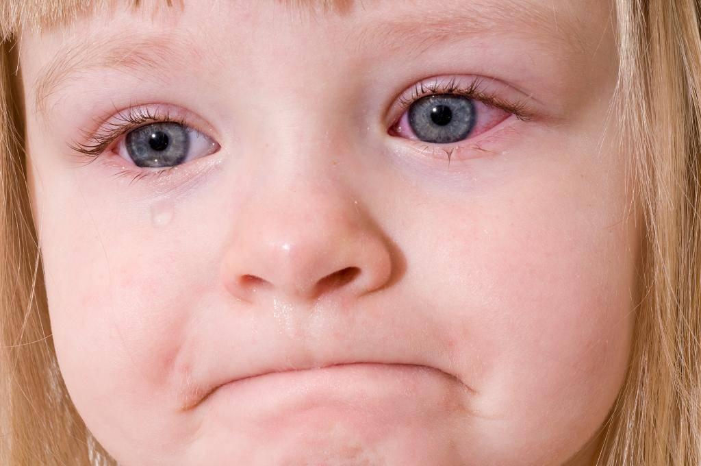 Аллергический конъюнктивит у детей и взрослых: симптомы, лечение — online-diagnos.ru