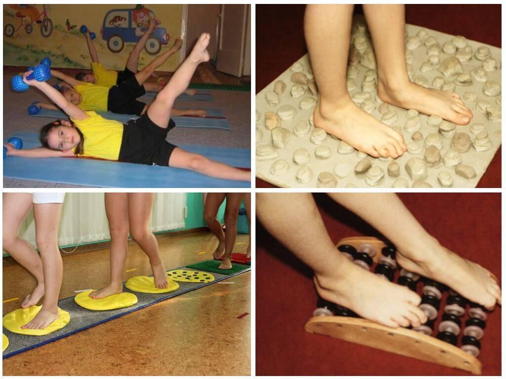 Про лечение косолапия у детей упражнениями лфк
