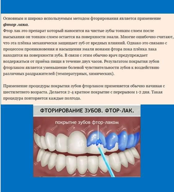 Глубокое фторирование эмали зубов: что это такое, как делается