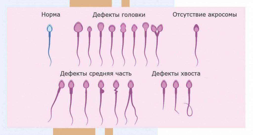 Что такое лейкоспермия и как ее лечить, причины появления и влияние на зачатие