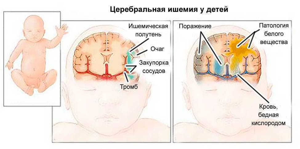 Нейросонография (узи новорожденных)