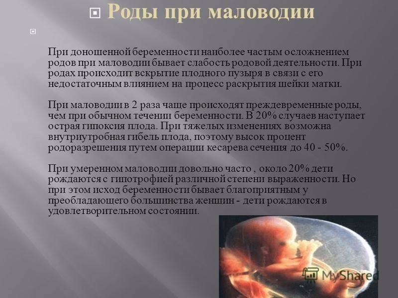 Причины и последствия умеренного многоводия при беременности