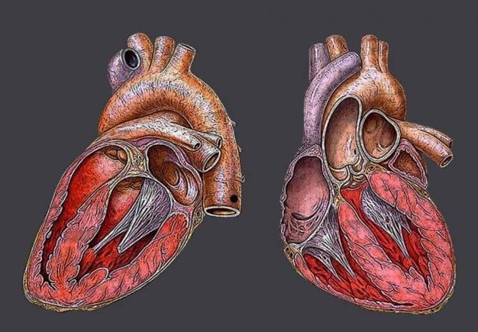Что такое дополнительная хорда левого желудочка