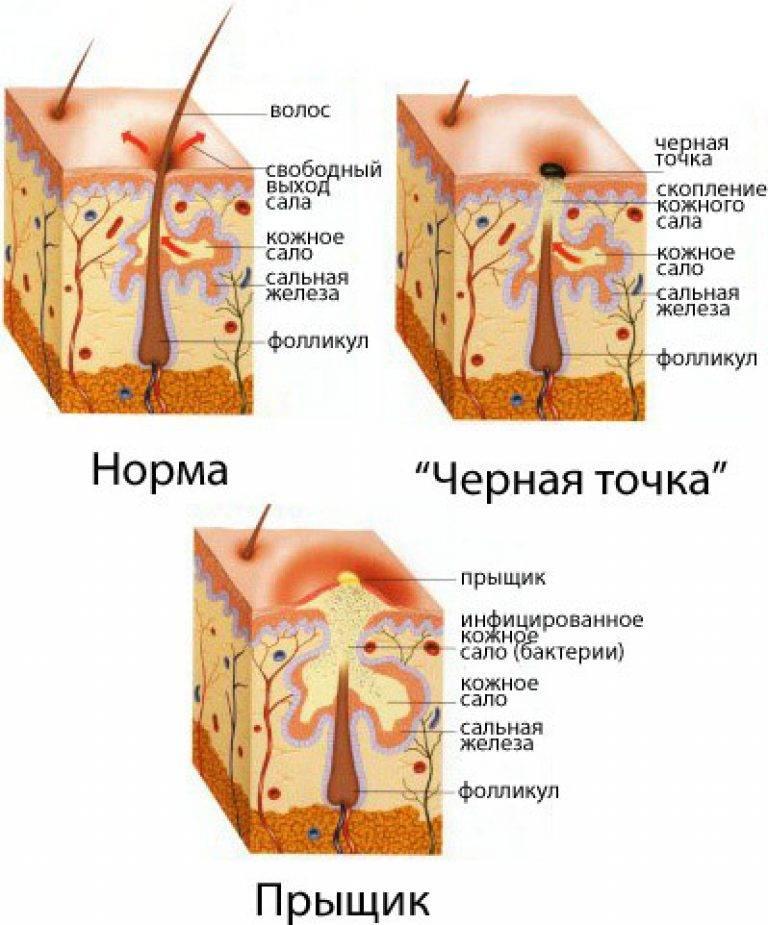 Болезни тела как продолжение мыслей: психолог-терапевт рассказал об особенностях и способах коррекции психосоматических проявлений