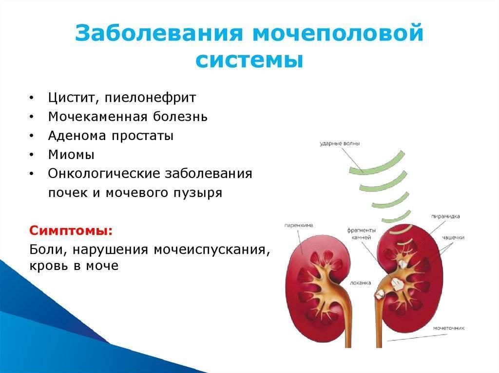 Диагностика урогенитальных инфекций