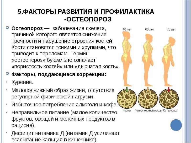 Главное о остеопорозе у детей