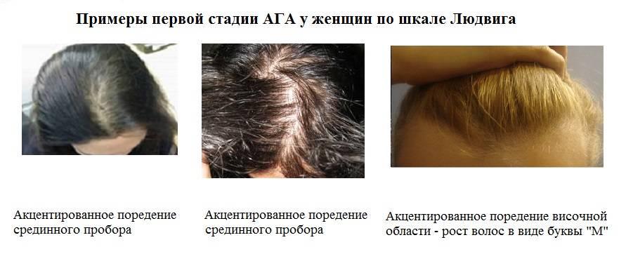 Выпадение волос (алопеция, облысение) у мужчин и женщин: причины, лечение – напоправку