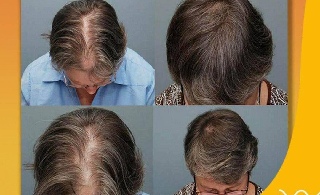 Психосоматика волосы (выпадение волос)
