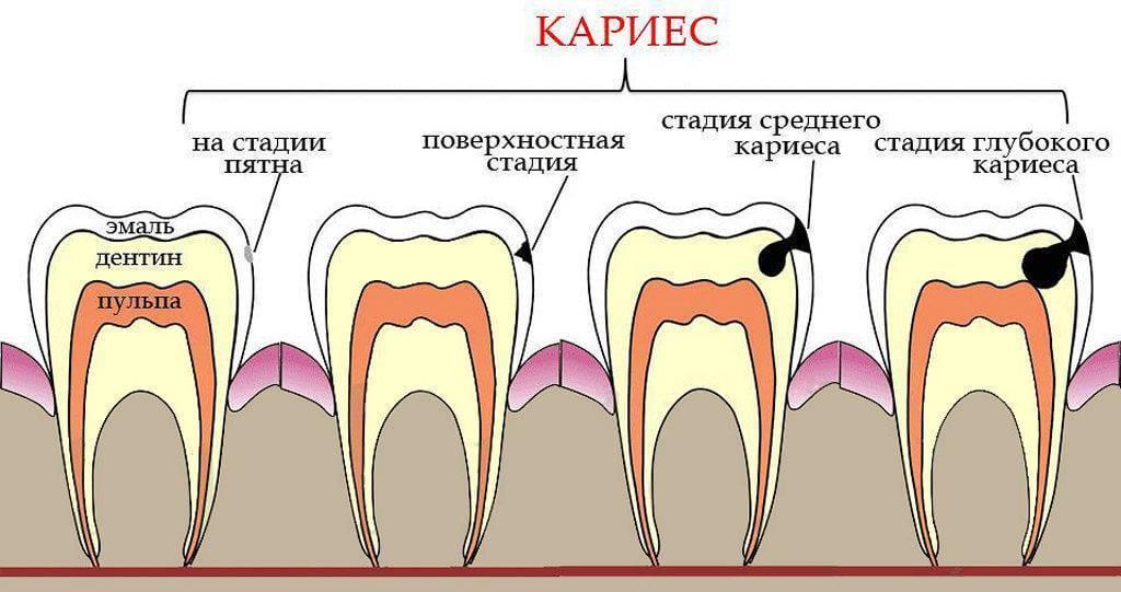 Пульпит: симптомы и лечение, удаление нерва в зубе
