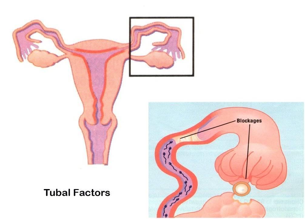 Дело — труба?  трубно-перитонеальный фактор — ведущая причина женского бесплодия. непроходимость маточных труб: виды трубного бесплодия, причины, диагностика и лечение.