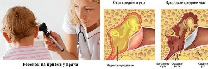 Лечение тонзиллита с гнойными пробками