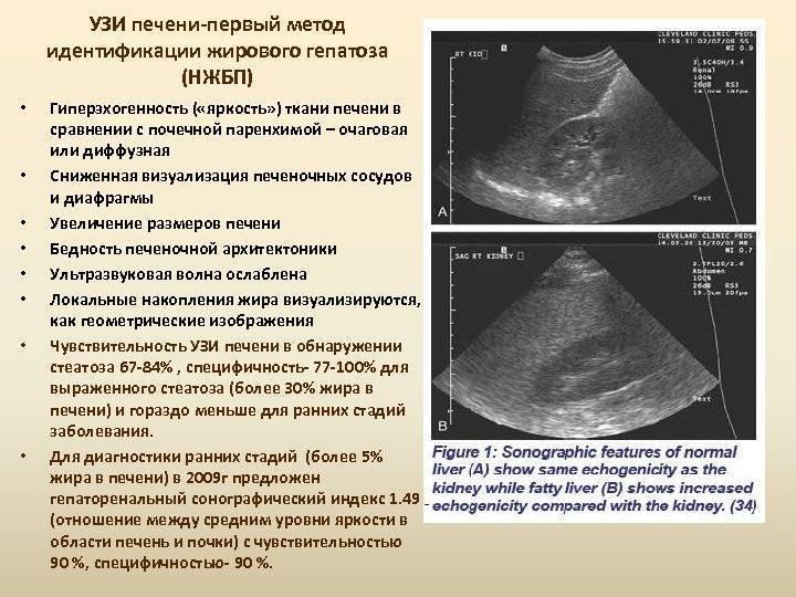 Подготовка к узи поджелудочной железы, расшифровка результатов, норма и отклонение