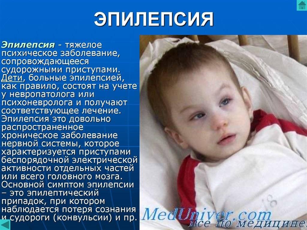 Эпилепсия у детей - доказательная медицина для всех