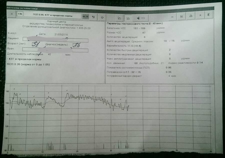 Норма ктг при беременности: нормальные показатели состояния плода, таблица, баллы