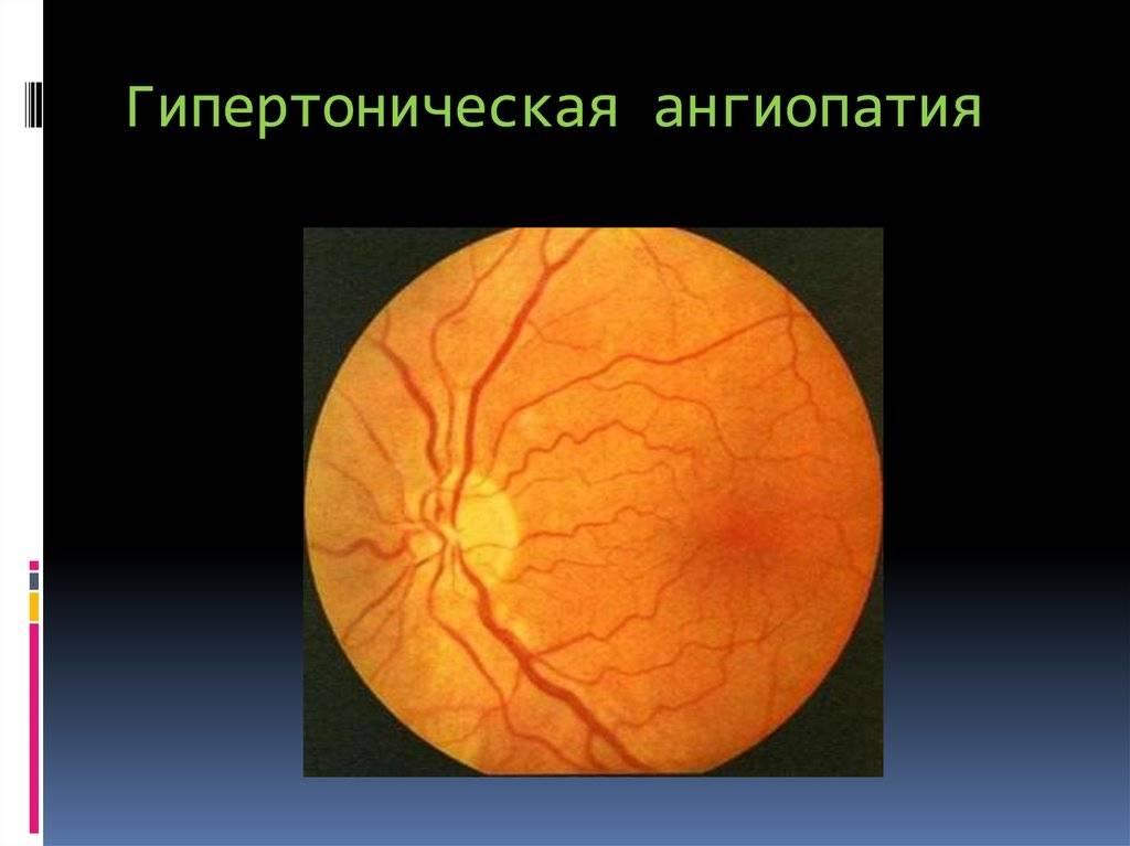 Ангиопатия сетчатки глаза у ребенка - что это, лечение, причины, симптомы   все о болезнях глаз
