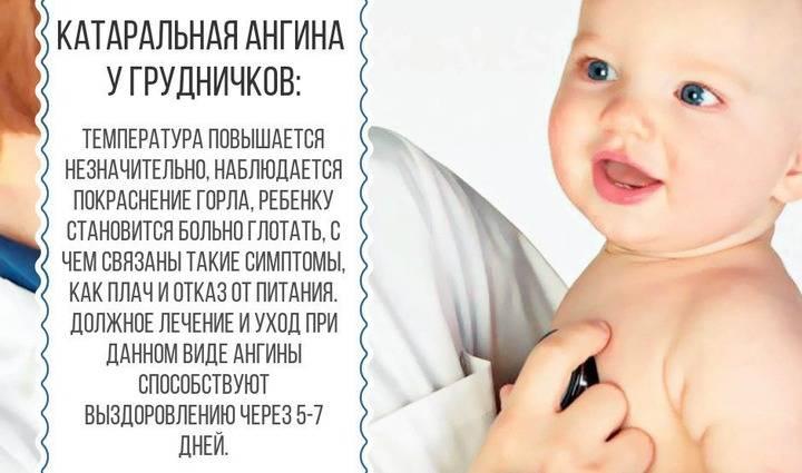 Ангина у детей - симптомы болезни, профилактика и лечение ангины у детей, причины заболевания и его диагностика на eurolab