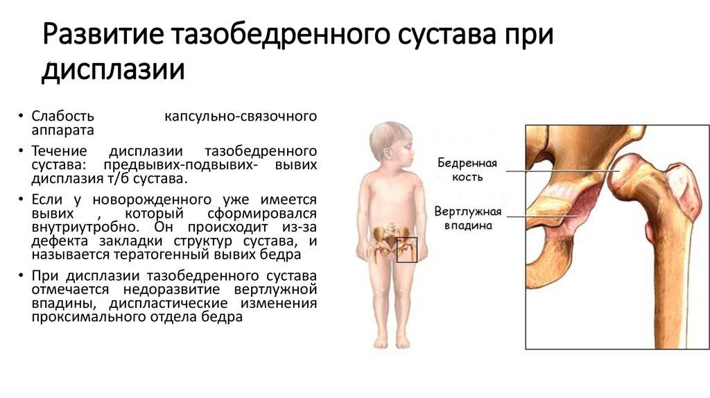 Рентген тазобедренного сустава у детей: как делают, расшифровка результатов | food and health