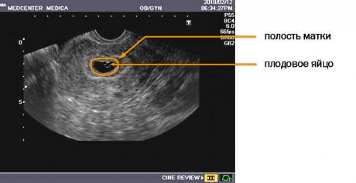 Вредно ли узи при беременности? опасно ли узи? как часто можно делать узи?