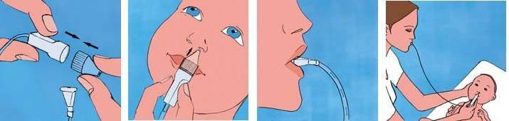 Эндоскопия носа и носоглотки - золотой стандарт диагностики