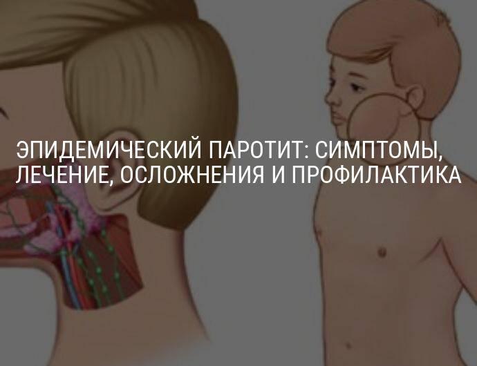 Эпидемический паротит. заболевания.
