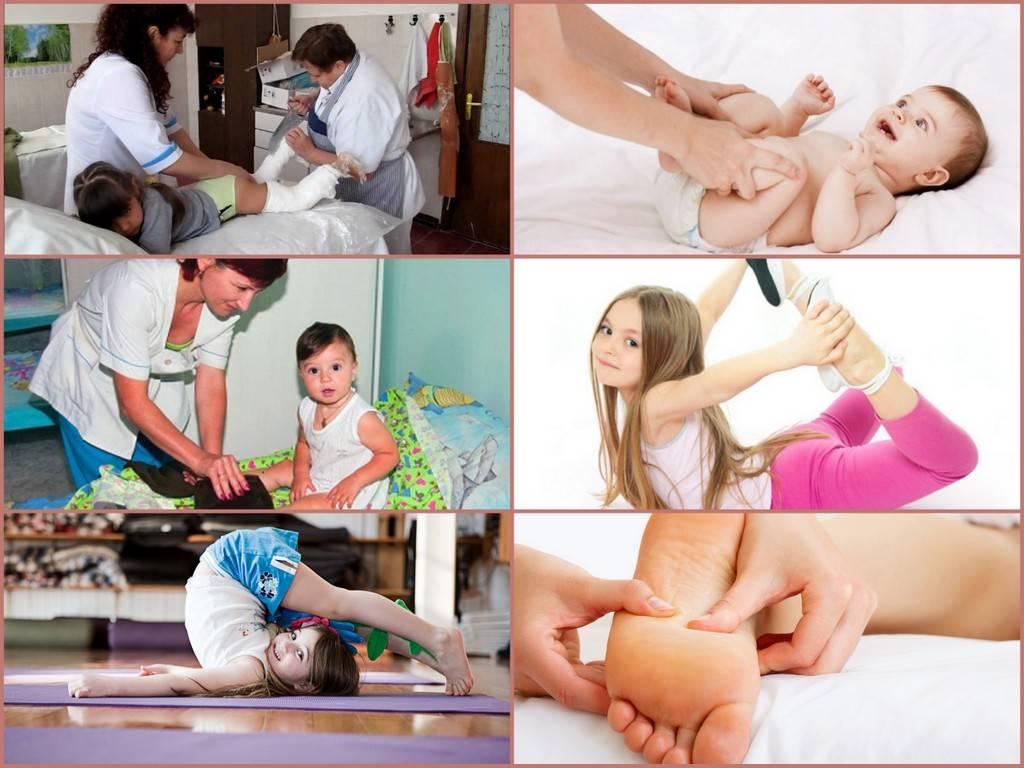 Массаж и лечебная гимнастика при врожденной косолапости