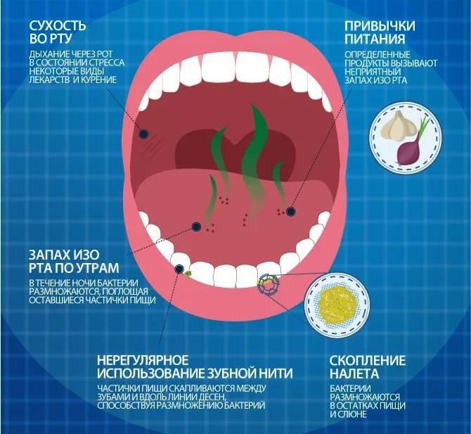 Аденоиды у ребенка | причины, как лечить, последствия | лор боклин а.к.