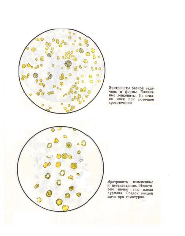 Белок и лейкоциты в моче