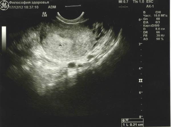 Фото узи ребенка на разных сроках беременности * клиника диана