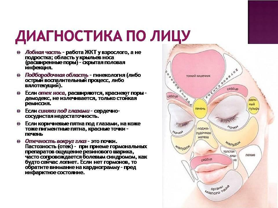 Прыщи (акне) - причины и лечение прыщей на лице, на теле, на лбу, на подбородке, на половых органах, на спине, на ногах и руках :: polismed.com