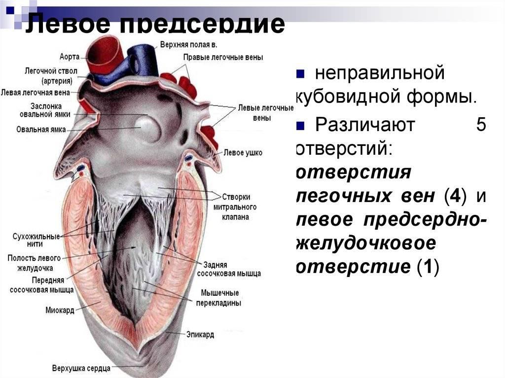 Дополнительные трабекулы в полости левого желудочка