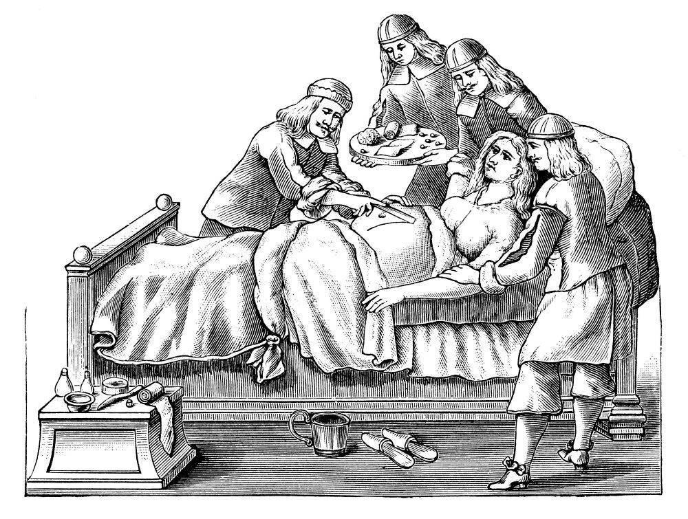 Почему кесарево сечение так называется, откуда пошло такое название?