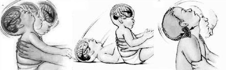 Причины того, что грудничок мотает из стороны в сторону головой