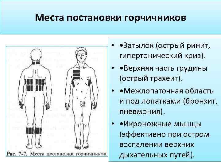 Горчичники при беременности в 1, 2 и 3 триместрах