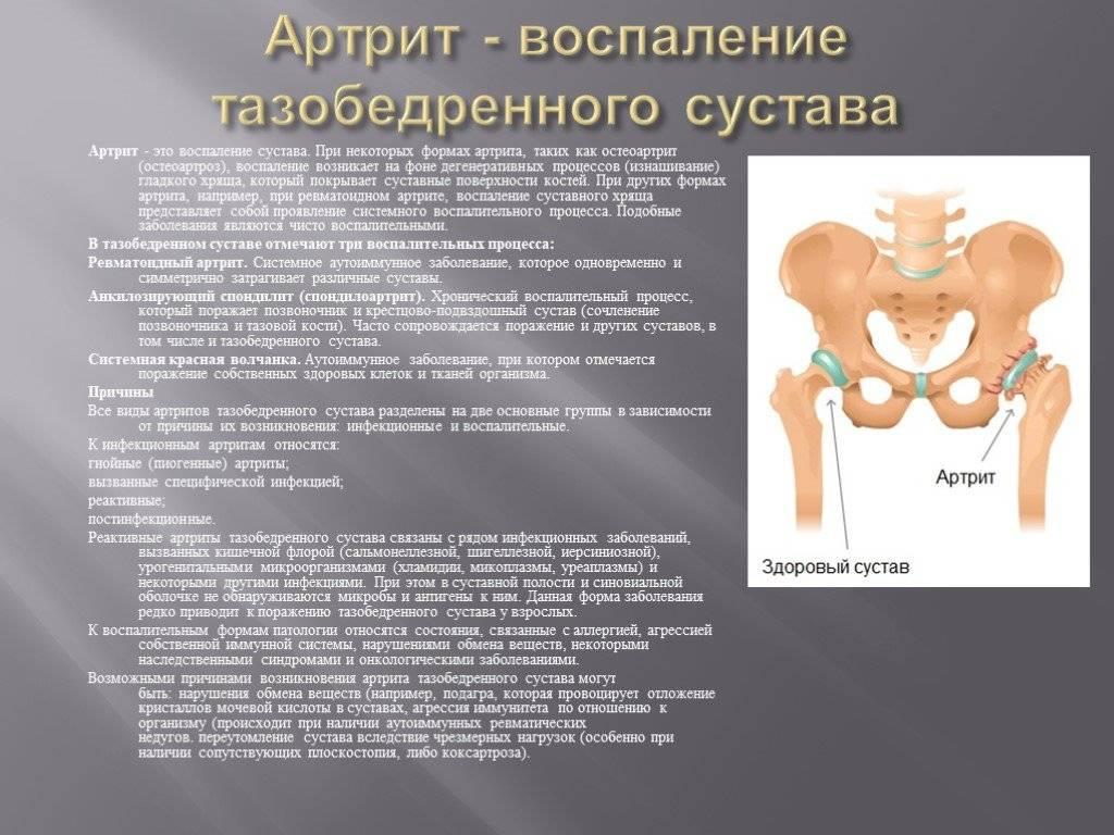 Выбор метода лечения при дисплазии тазобедренных суставов