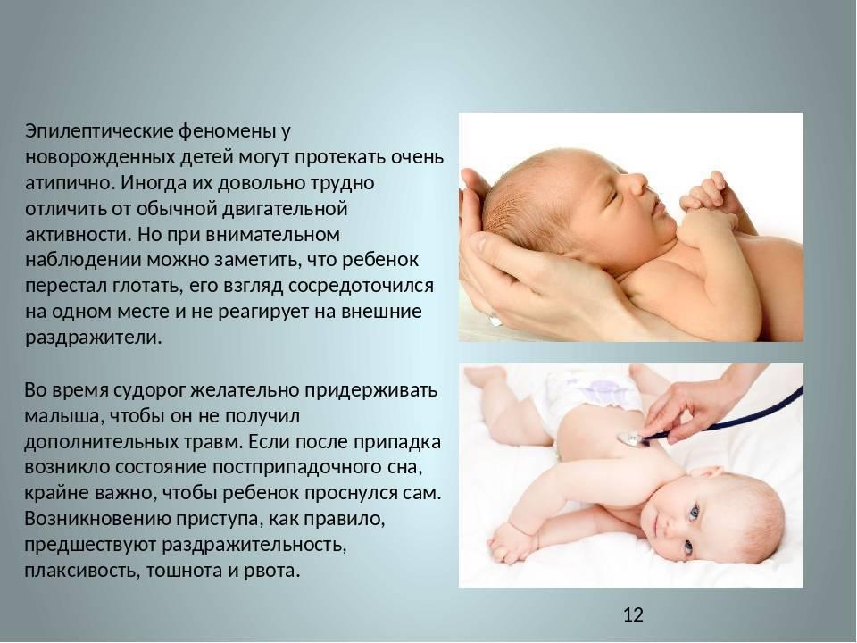 Эпилепсия у детей признаки, симптомы, лечение