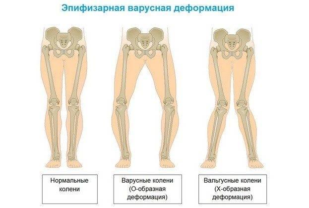 Деформация стопы у детей   детская больница «сафра» - официальный представитель